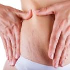 Curso de tratamento estético contra estrias